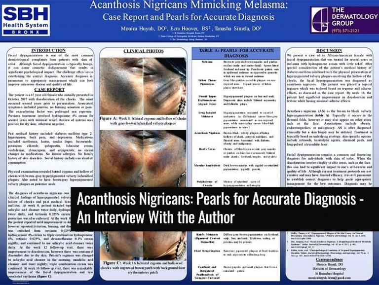 Acanthosis-Nigricans-Mimicking-Melasma-boost-768x578