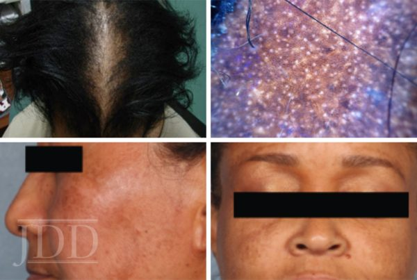Medical Updates in Skin of Color
