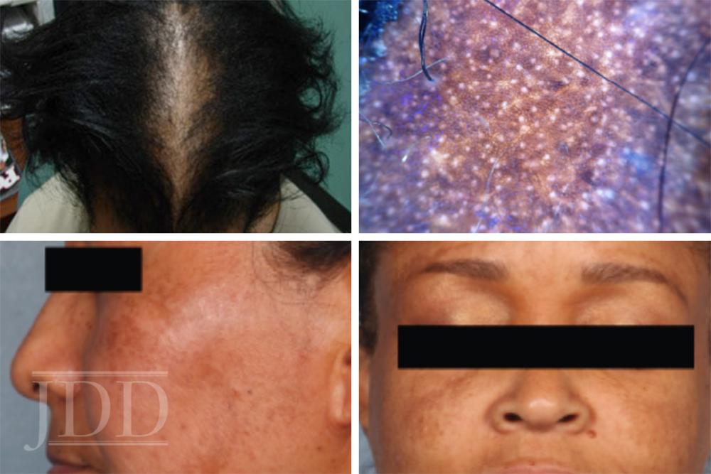 Medical Updates in Skin of Color