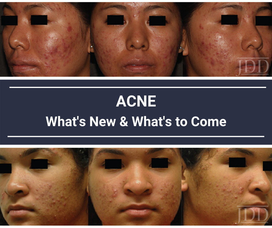 Acne in Skin of Color Alexis
