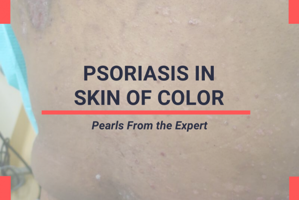 Skin of Color in Psoriasis Pearls from SOC Update