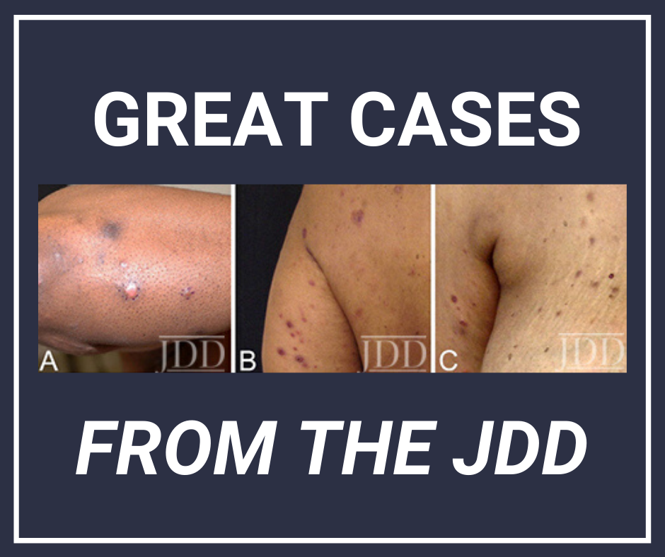 Lymphomatoid Papulosis JDD Skin of Color