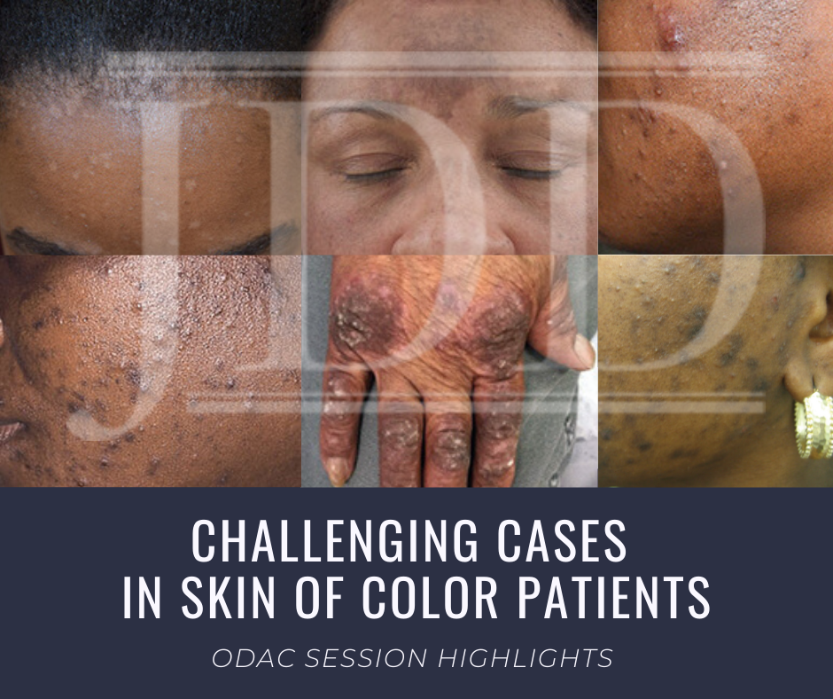 Skin of Color patient dermatology cases