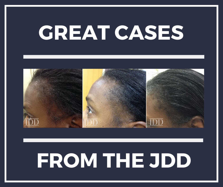 Patient with Alopecia