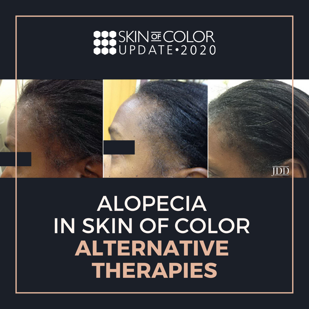Alopecia in Skin of Color Dermatology Conference