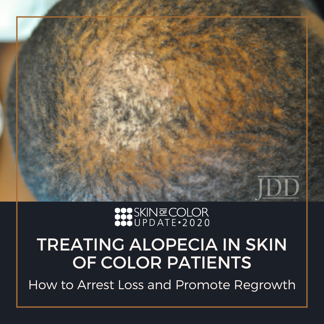 Treating Alopecia in Skin of Color Patients