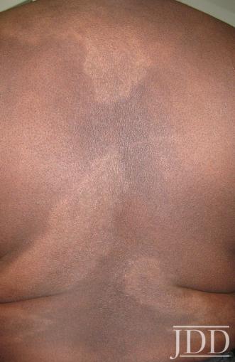 Cutaneous Sarcoidosis