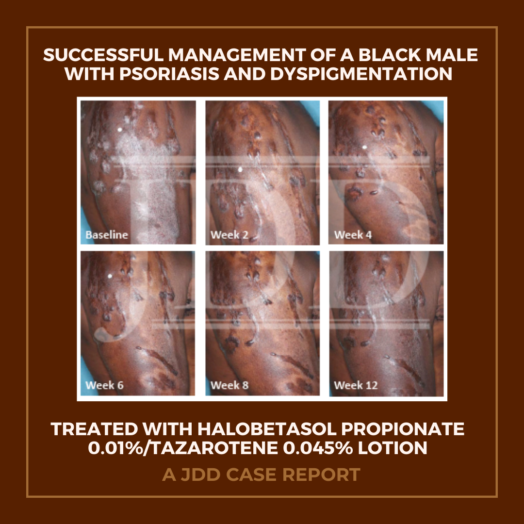 Black Male With Psoriasis and Dyspigmentation
